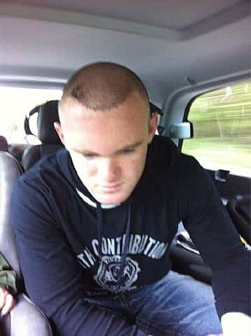 Featured image for Wayne Rooney Tweets Photo of New Hair Transplant