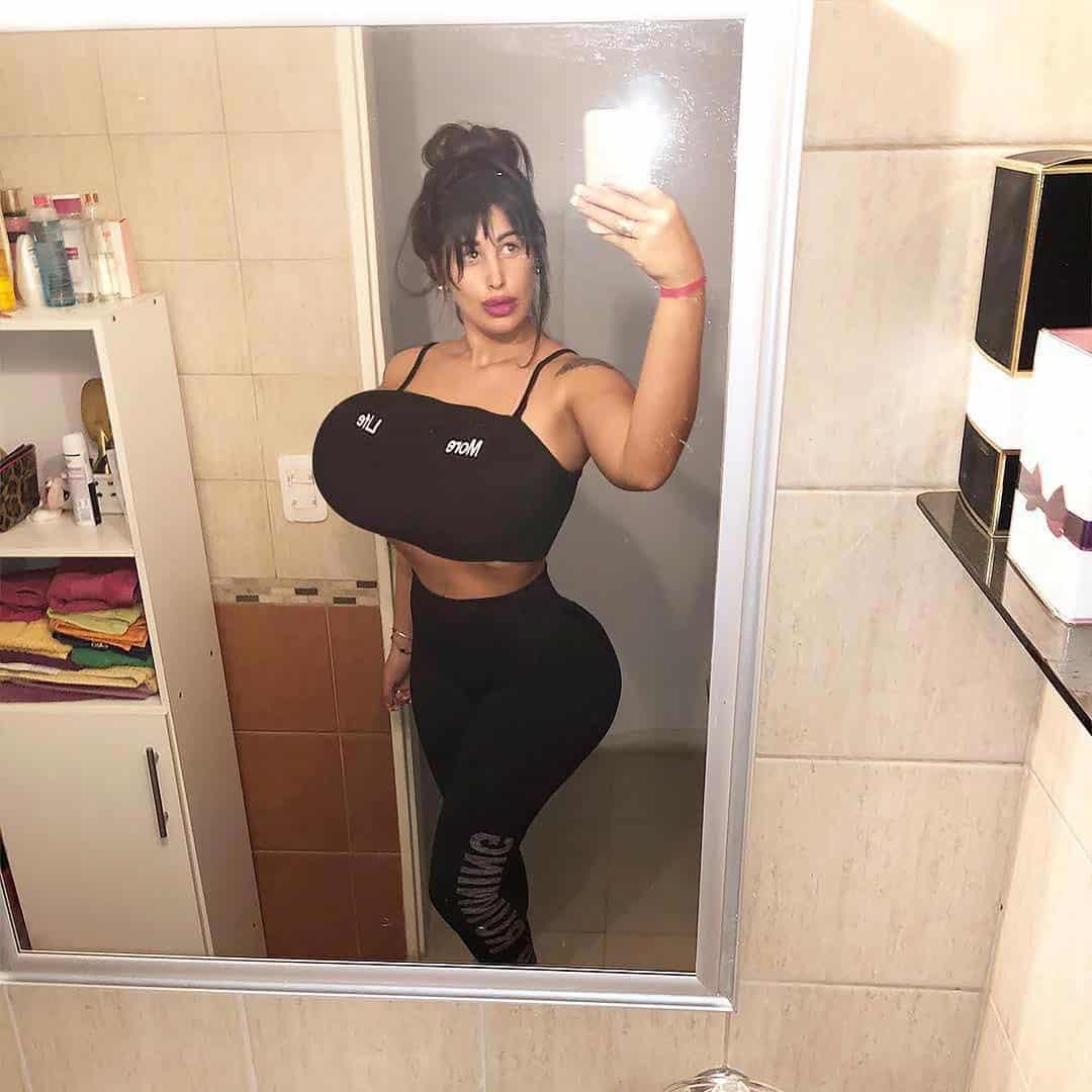 Kim Kardashian Wannabe Gets Colossal Breasts, Cant Run