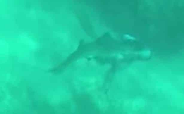 Man Miraculously Escapes Shark Attack Which Left Him with a Bite Out of His Head
