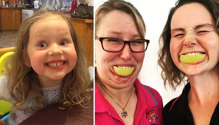 The #LemonFaceChallenge is Helping a Little Girl with Cancer to Smile Again