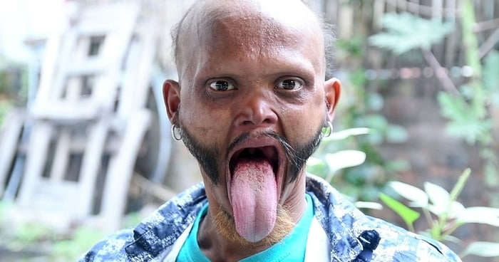 Featured image for Watch: Man Can Lick His Own Forehead, And It's Totally Sick!