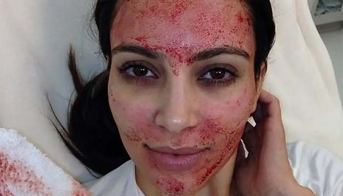 Two Beauty Lovers Contract HIV From Vampire Facials Gone Wrong